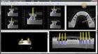 Dr. Elmar Frank - Export einer Implantatplanung aus der Software von BlueSkyBio zwecks Herstellung einer Bohrschablone mit dem GPI-System
