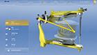 Dr. Elmar Frank - Demonstration des Werkzeugs virtueller Artikulator, der ab CEREC SW Version 4.2 implementiert wurde. Berechnung von FGP-Bissen mit/ohne Berücksichtigung der Restaurationen