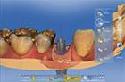 Dr. Elmar Frank - Scan mit Scanbody und TiScan Scanabutment, Konstruktion einer einteiligen Krone auf Implantat