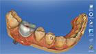 Dr. Elmar Frank - Konstruktion einer mehrschichtigen implantatgetragenen Krone. Abutment wird automatisch aus der designten Krone berechnet.