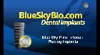 Michael Saltzman - Placing virtual implants in BSP 3.xx
